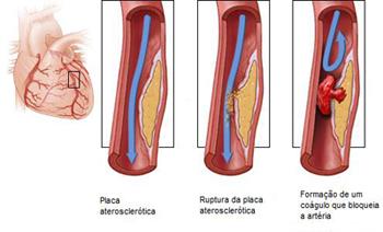 Los preparados contra los asteriscos vasculares en los pies
